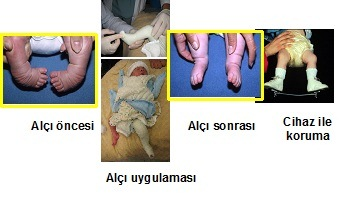 The treatment of congenital pes equinovarus with cast